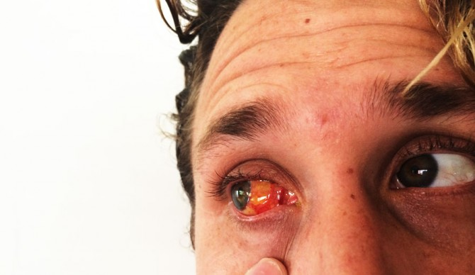 I Got A Pterygium Cut Out Of My Eyeball And I Learned