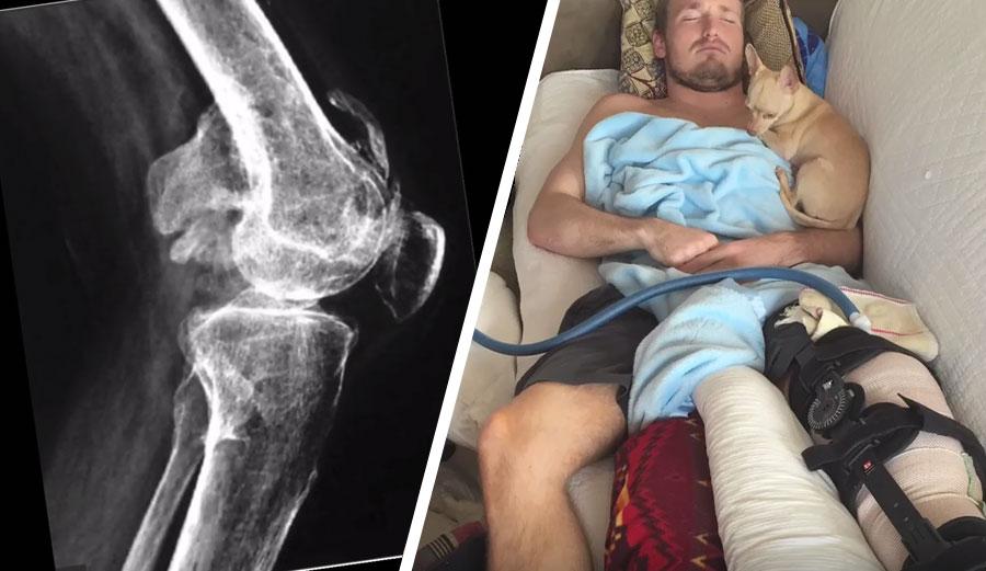 Injury Ben Gravy
