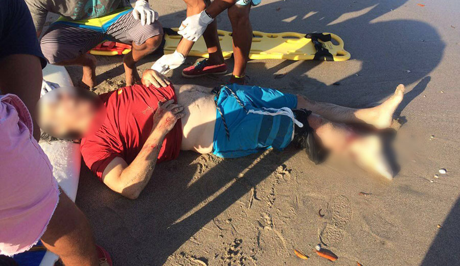 """""""The victim suffered partial amputation of his right ankle and most of his calf muscle was stripped."""" Photo: Primero en Noticias"""