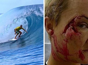 One of surfing's most graphic injuries came from a day at Teahupoo that didn't seem capable of inflicting the kind of damage that it did.