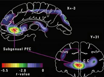 Scientists recently studied the physical effects that nature has on your brain.