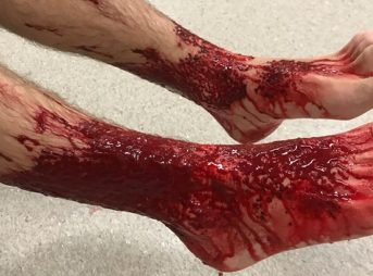 Sam Kazinay's legs came out of the water looking like this. Image: AAP