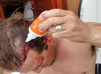 Damien Hobgood blasted by foil in fiji